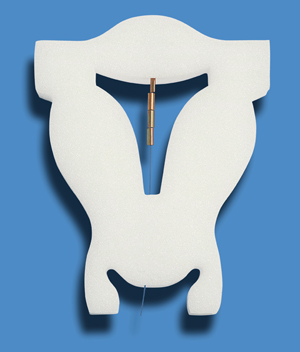 control birth method IUD